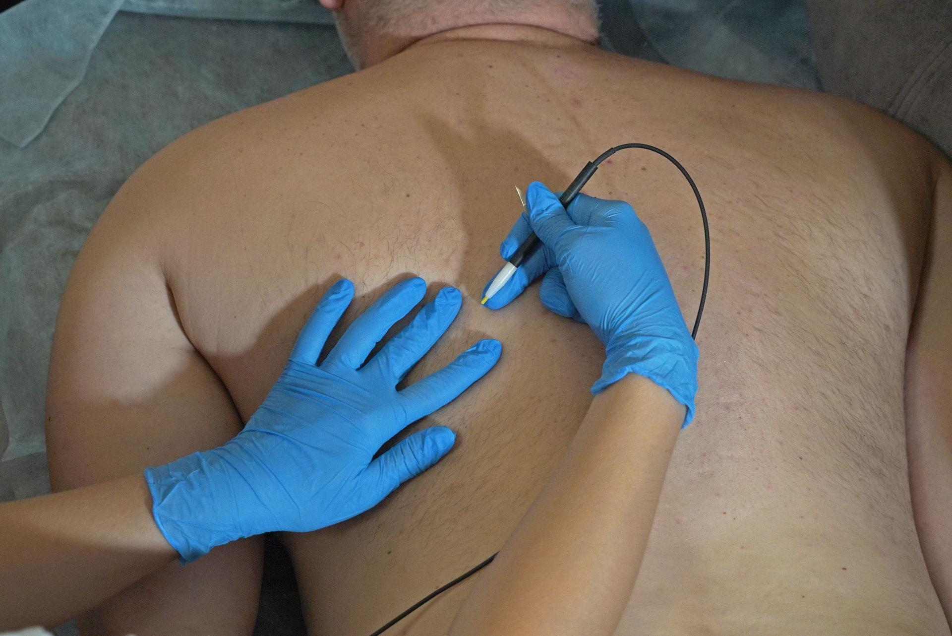 Эпиляция тела в Анапе